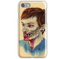 Travis iPhone Case/Skin