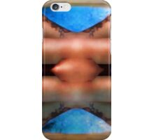 Support iPhone Case/Skin