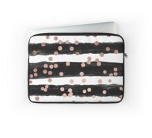 Girly rose gold confetti black watercolor stripes Laptop Sleeve