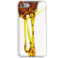 Golden Ropes iPhone Case/Skin