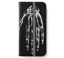 Vintage Anatomy Hand Print iPhone Wallet/Case/Skin