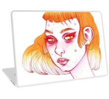 SKIN FLARE, DON'T CARE!  Laptop Skin