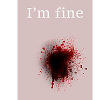I am fine, Bullet shot Photographic Print