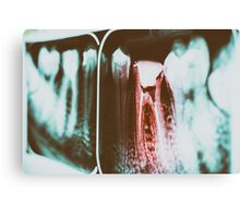 Pain Of Tooth Decay On Teeth X-Ray Canvas Print