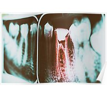 Pain Of Tooth Decay On Teeth X-Ray Poster