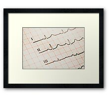 Sinus Heart Rhythm On Electrocardiogram Record Paper Framed Print