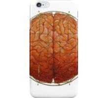 Cerebral Hyperstereogram iPhone Case/Skin