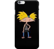 Swag Arnold iPhone Case/Skin