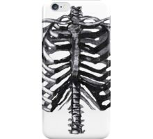 Chest X-Ray iPhone Case/Skin