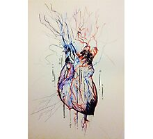A Flood of Blood to the Heart Photographic Print