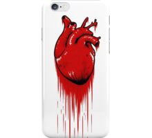 My Bloody Hearth iPhone Case/Skin