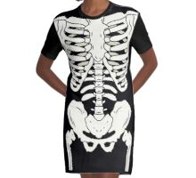 Bones Graphic T-Shirt Dress