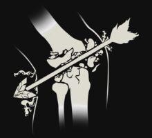 Arrow Into The Knee by Rokkaku