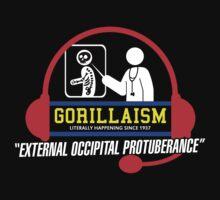 External Occipital Protuberance by DarkMatchDuds