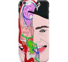 Getter Radical Dude iPhone Case/Skin