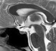 Human Brain Side MR-image Sticker