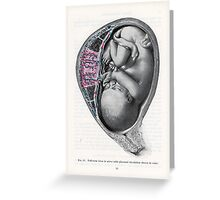 Vintage Fetal Illustration Greeting Card