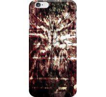 Hematolagnia #13.png iPhone Case/Skin