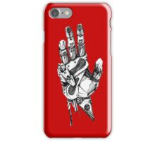 Do you need a help? iPhone Case/Skin