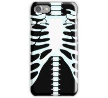 The Human Rib Cage iPhone Case/Skin