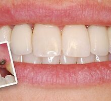 Leading Clinic Offering Dental Implants in India by ansh03