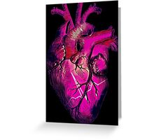 Commotio Cordis (Small Text) Greeting Card