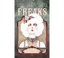 The Beauty Freaks - The Albino Photographic Print
