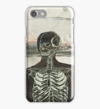 The Naked Stare  iPhone Case/Skin
