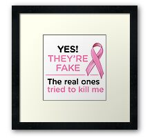 YES THEY'RE FAKE, THE REAL ONES TRIED TO KILL ME Framed Print