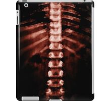 Bloody Xray iPad Case/Skin