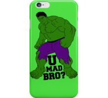 U Mad Bro? iPhone Case/Skin