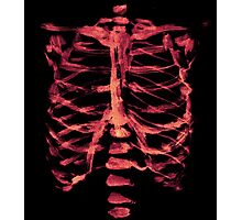 Red Ribcage Photographic Print
