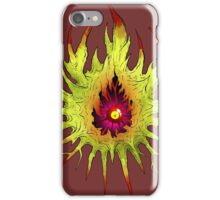 Giant killer kidney stone iPhone Case/Skin