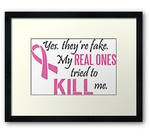 Yes, they're fake. My real ones tried to kill me! Framed Print