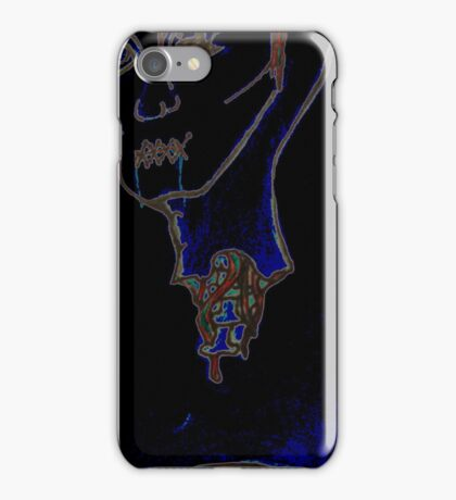 A SEVERED HEAD  iPhone Case/Skin