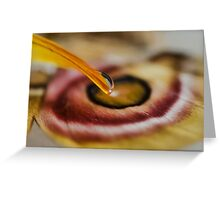 Love Begins at Touch Greeting Card