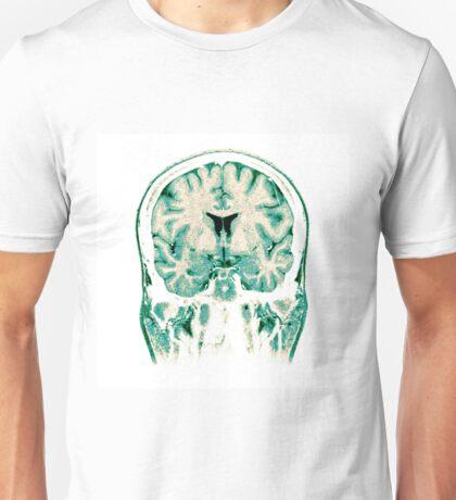 Normal Coronal MRI of the Brain  Unisex T-Shirt
