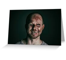 Happy Man with Beaten Up Face Greeting Card