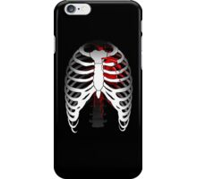 Love hurts... (Ribcage with heart) iPhone Case/Skin