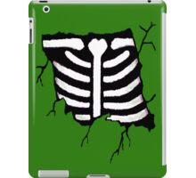 Breaking Bones iPad Case/Skin