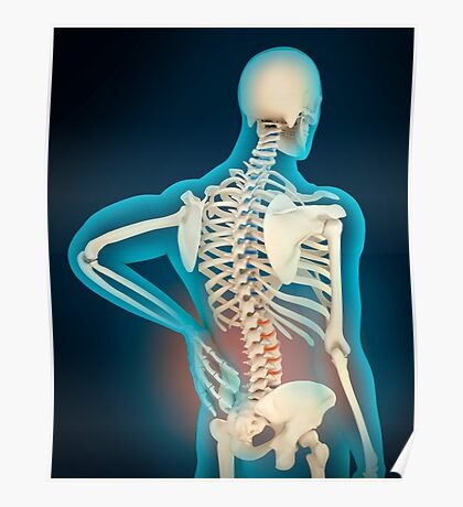 Medical illustration showing inflammation in human back area Poster