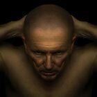 Headache by Randy Turnbow