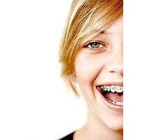 A smile with braces Photographic Print
