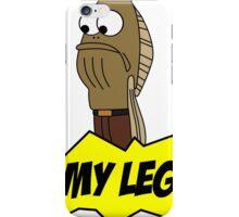 My Leg! iPhone Case/Skin
