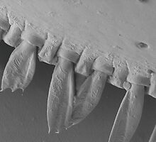 SEM side of a mite close up by tanyadann