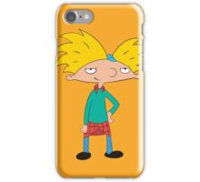 Arnold iPhone Case/Skin