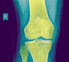 Knee x-ray front view by PhotoStock-Isra