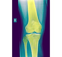 Knee x-ray front view Photographic Print