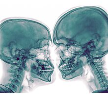 Kissing Couple. Two people kissing under x-ray Photographic Print