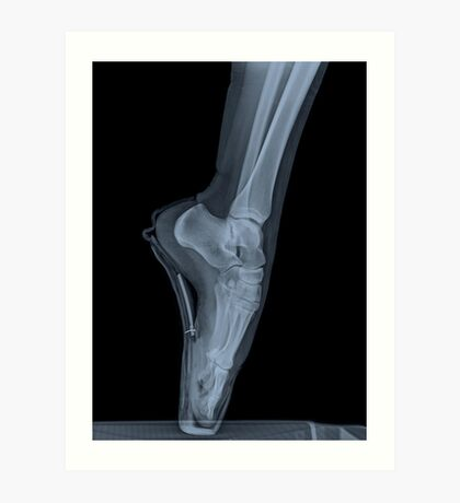 x-ray of a ballet dancer standing on pointe  Art Print